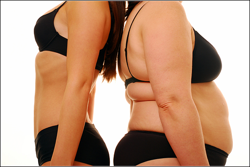 Obese individuals don't deserve to be bullied. But they don't deserve to be lied to, either.