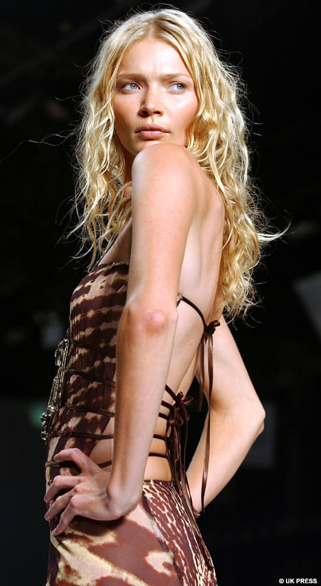 "At 110 lbs and 6'2"", model Jodie Kidd is medically underweight, by BMI."
