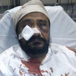 Hate Crimes Charges Will Be Filed Against Suspect in Beating of Sikh American Man
