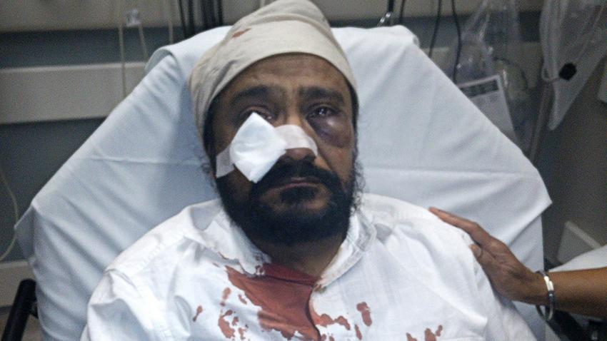 Inderjit Sing Mukker from his hospital bed, displaying his injuries from the alleged hate crime. (Photo credit: Sikh Coalition)
